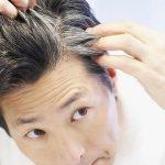 Làm gì khi tóc bạc nhiều ?