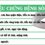 Kim tiền thảo: Giải pháp an toàn cho người bị sỏi thận