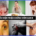 Người bị nhiễm virus viêm gan B có những biểu hiện gì?